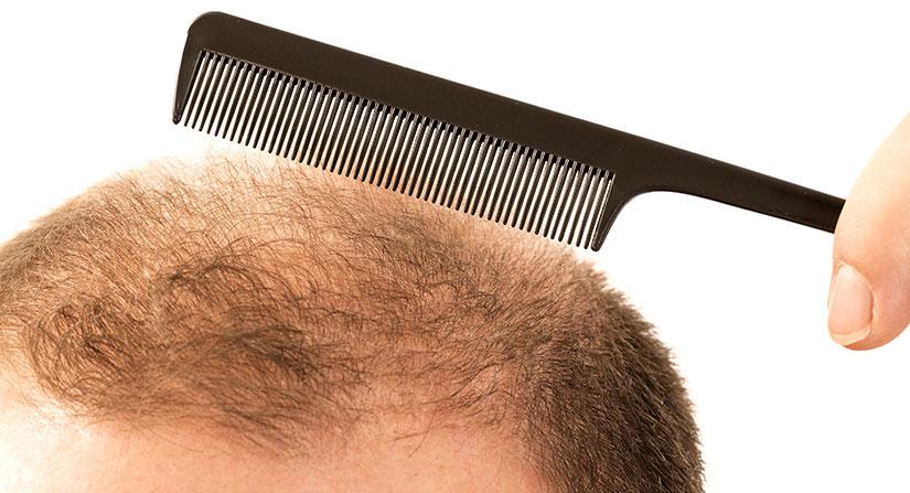 Saker att tänka på om du vill göra en hårtransplantation